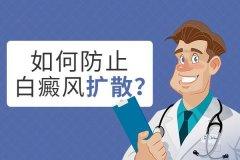 昆明白癜风治疗去哪家医院好?白癜风扩散如何预防